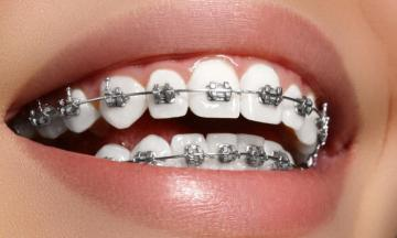 Braces - Somebody has a fixed camera on their teeth. braces