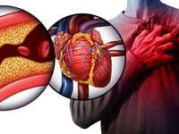 Serce - Jest to łamigłówka, która opowiada nam o sercu i jak wygląda od wewnątrz, gdy występuje powik